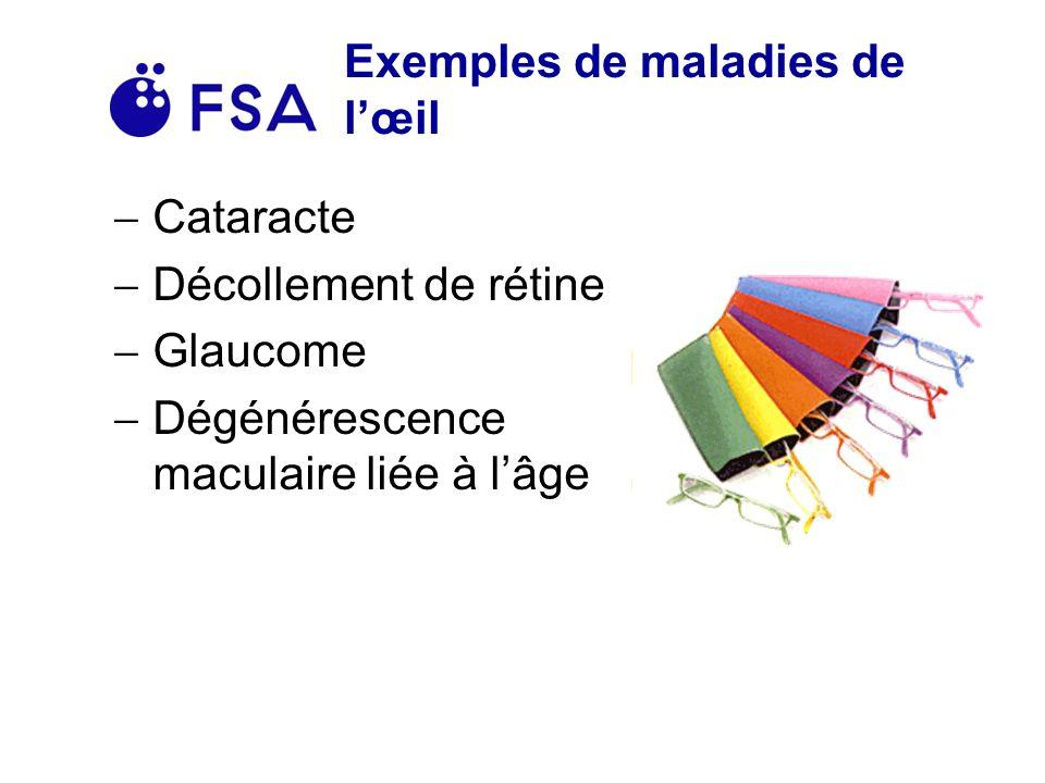 Exemples de maladies de l'œil