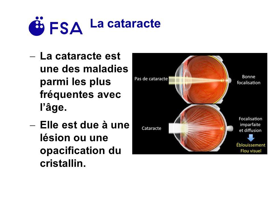 La cataracte La cataracte est une des maladies parmi les plus fréquentes avec l'âge.