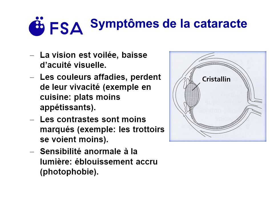 Symptômes de la cataracte