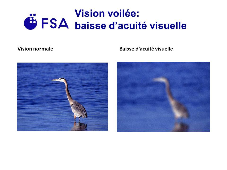 Vision voilée: baisse d'acuité visuelle