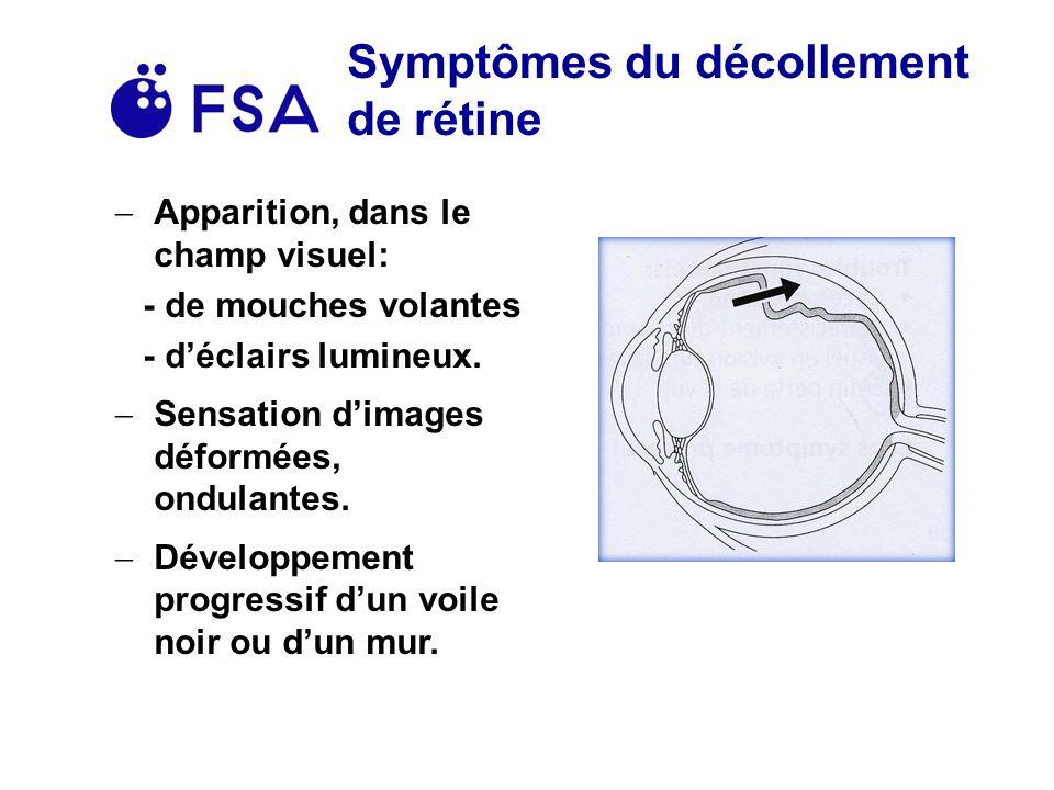 Symptômes du décollement de rétine