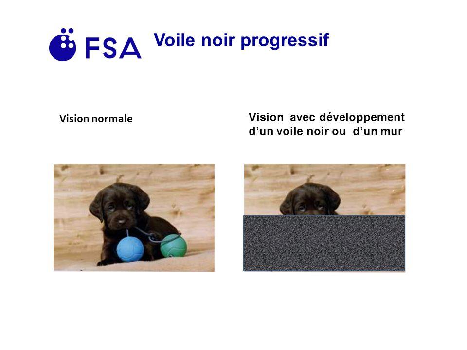 Voile noir progressif Vision normale