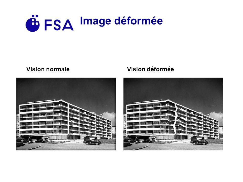 Image déformée Vision normale Vision déformée