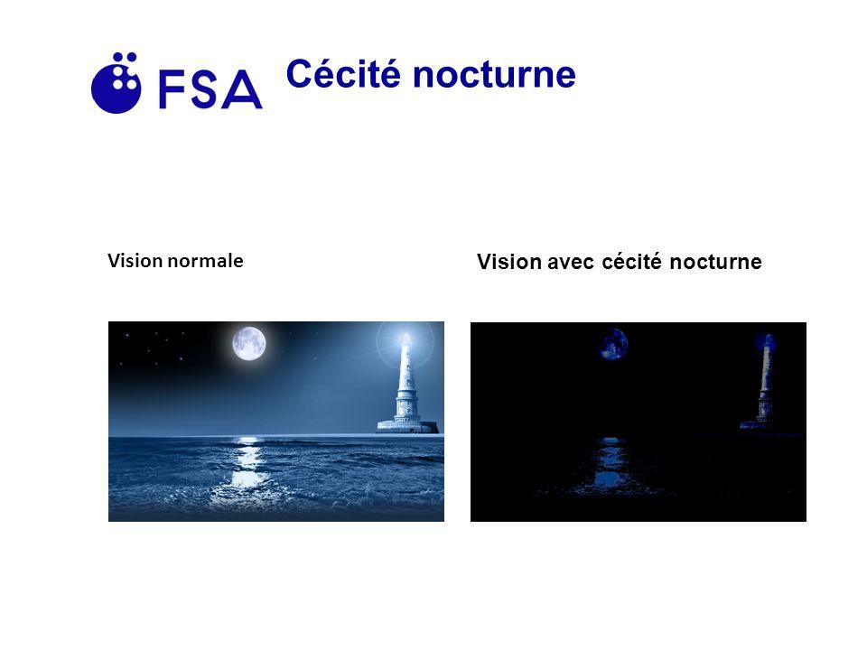 Cécité nocturne Vision normale Vision avec cécité nocturne