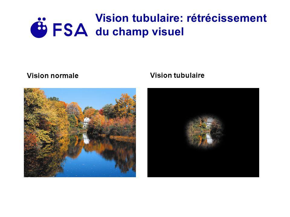 Vision tubulaire: rétrécissement du champ visuel