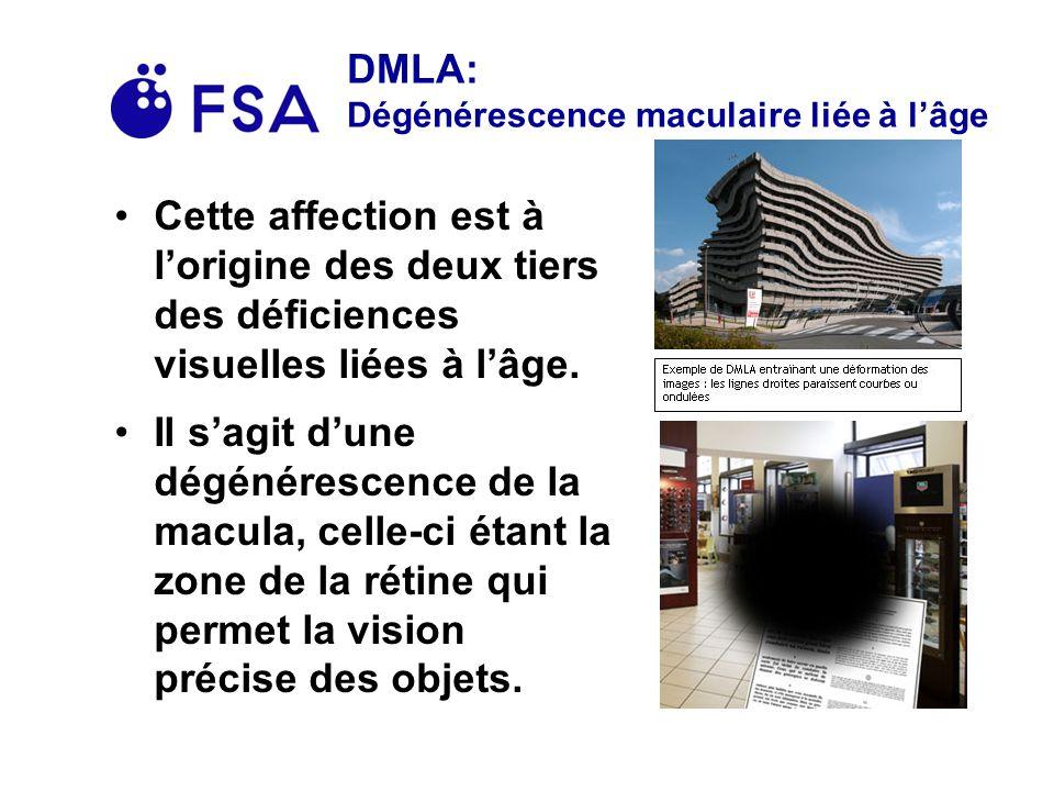 DMLA: Dégénérescence maculaire liée à l'âge