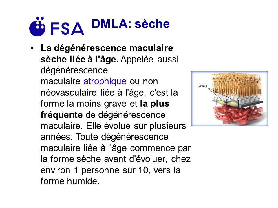 DMLA: sèche