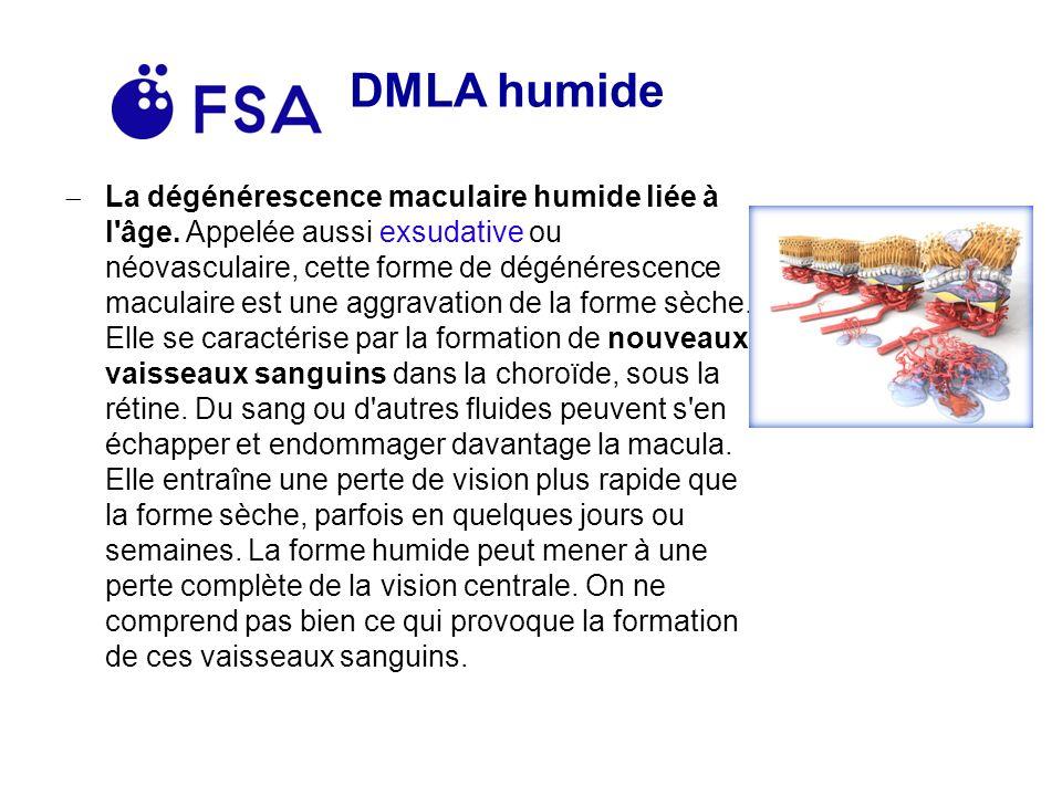 DMLA humide