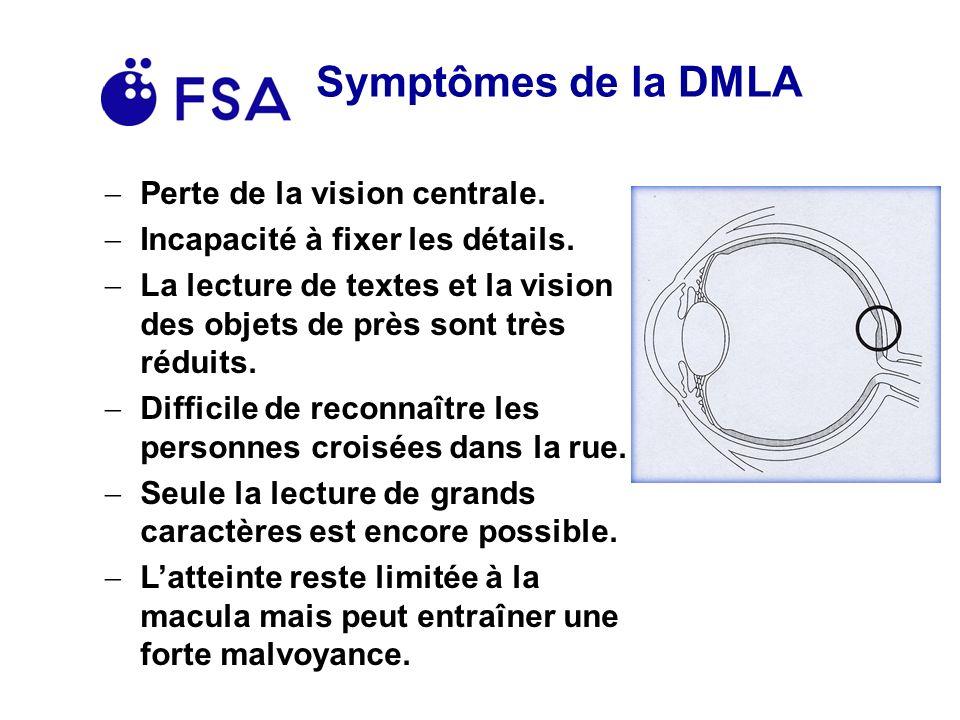 Symptômes de la DMLA Perte de la vision centrale.