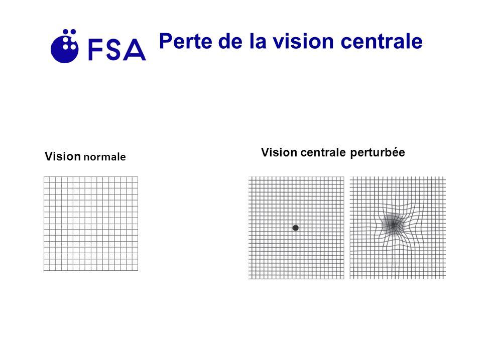 Perte de la vision centrale