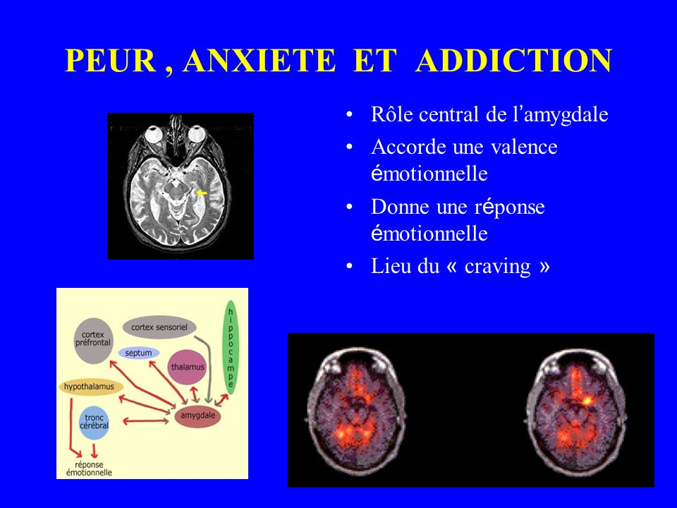 PEUR , ANXIETE ET ADDICTION