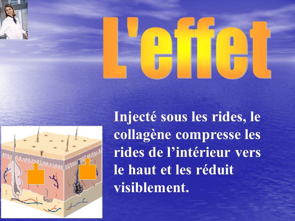 L effet Injecté sous les rides, le collagène compresse les rides de l'intérieur vers le haut et les réduit visiblement.