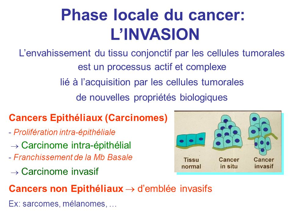 Phase locale du cancer: