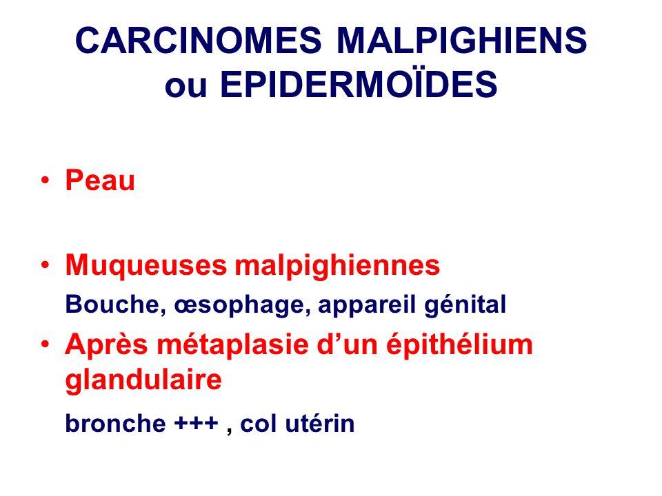 CARCINOMES MALPIGHIENS ou EPIDERMOÏDES
