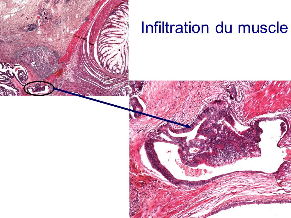 Infiltration du muscle