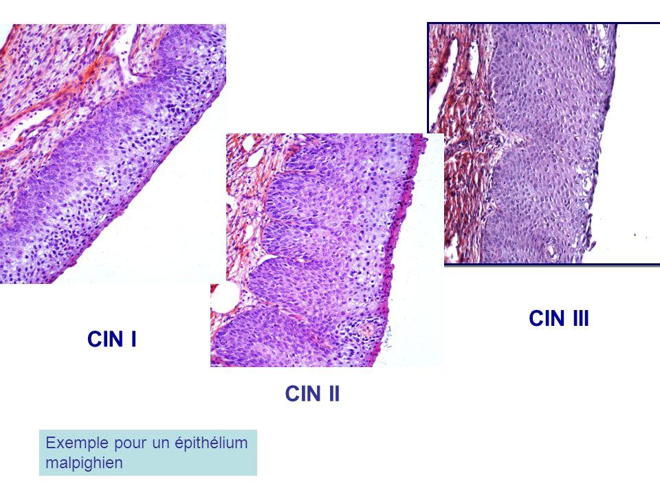 CIN III CIN I CIN II Exemple pour un épithélium malpighien