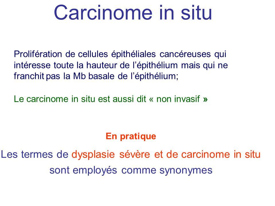 Carcinome in situ