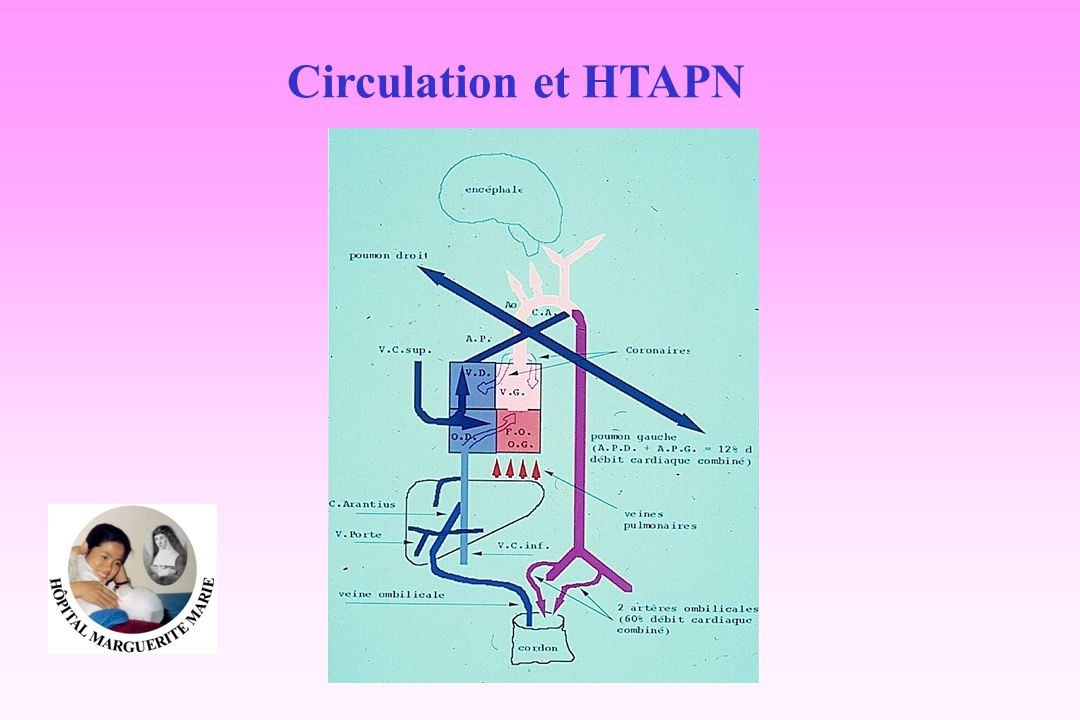 Circulation et HTAPN