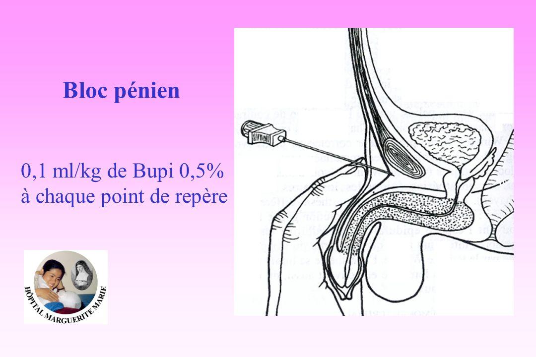 Bloc pénien 0,1 ml/kg de Bupi 0,5% à chaque point de repère
