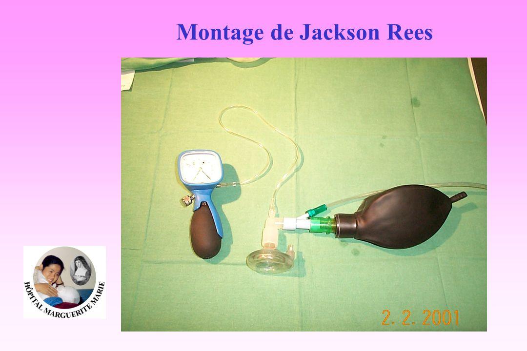 Montage de Jackson Rees