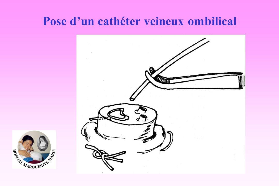 Pose d'un cathéter veineux ombilical