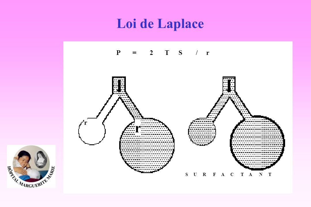 Loi de Laplace P = 2 T S / r U R F A C N