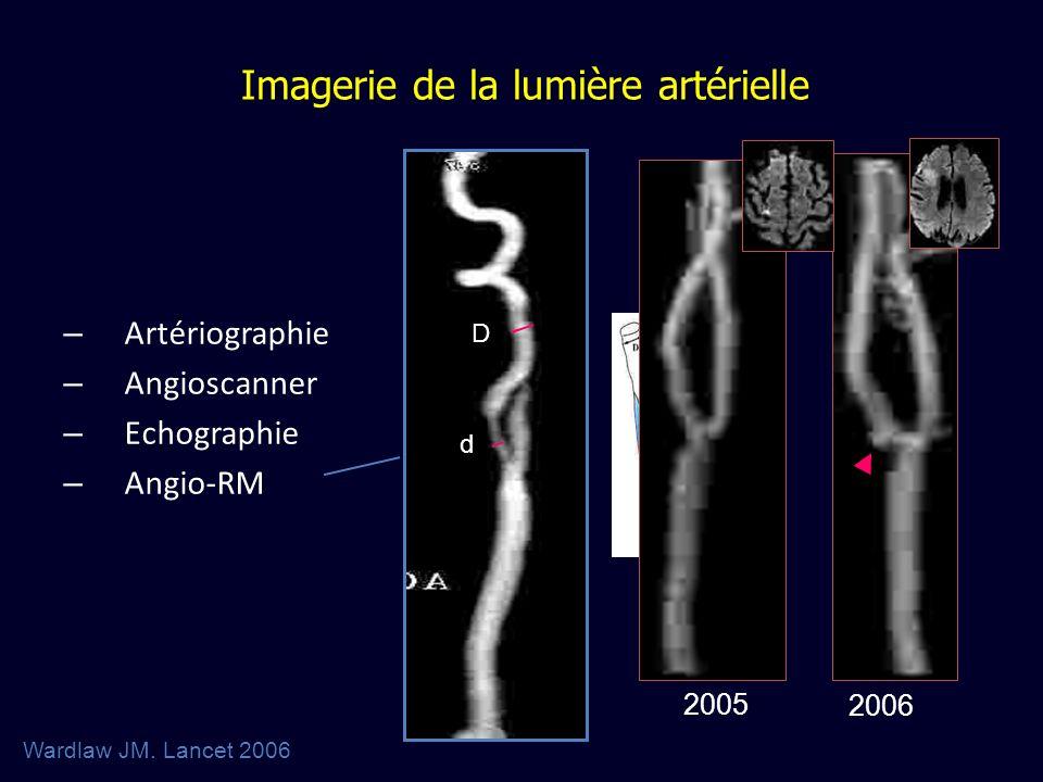Imagerie de la lumière artérielle