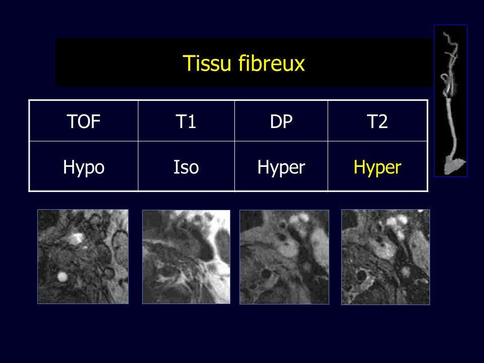 Tissu fibreux TOF T1 DP T2 Hypo Iso Hyper
