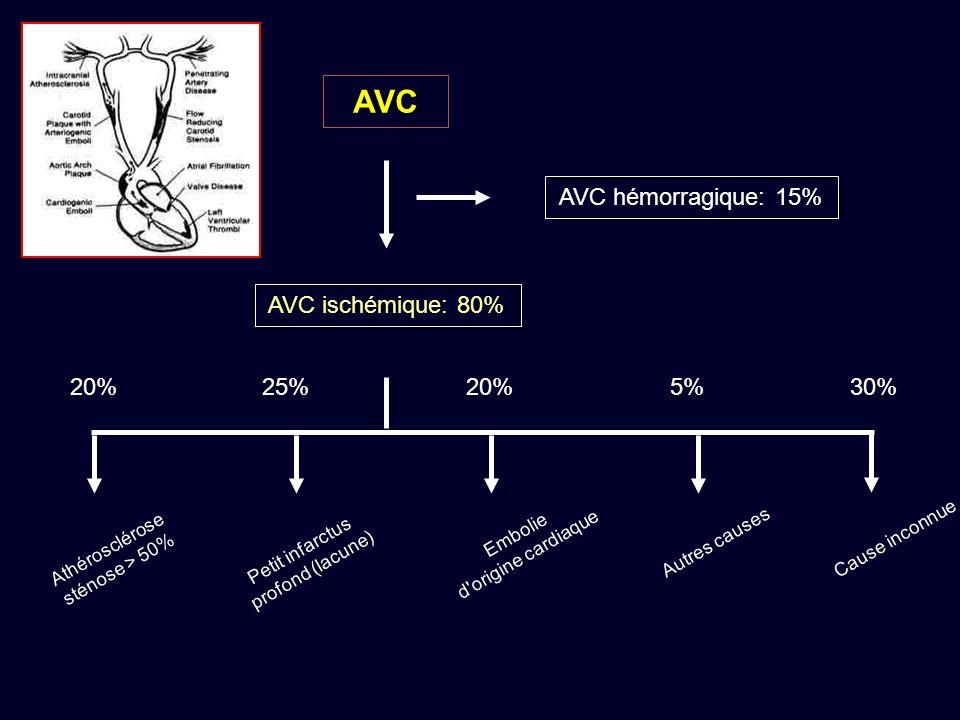 AVC AVC hémorragique: 15% AVC ischémique: 80% 20% 25% 20% 5% 30%
