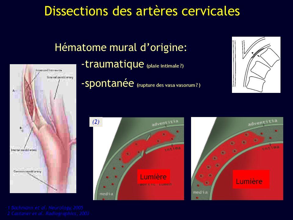 Dissections des artères cervicales