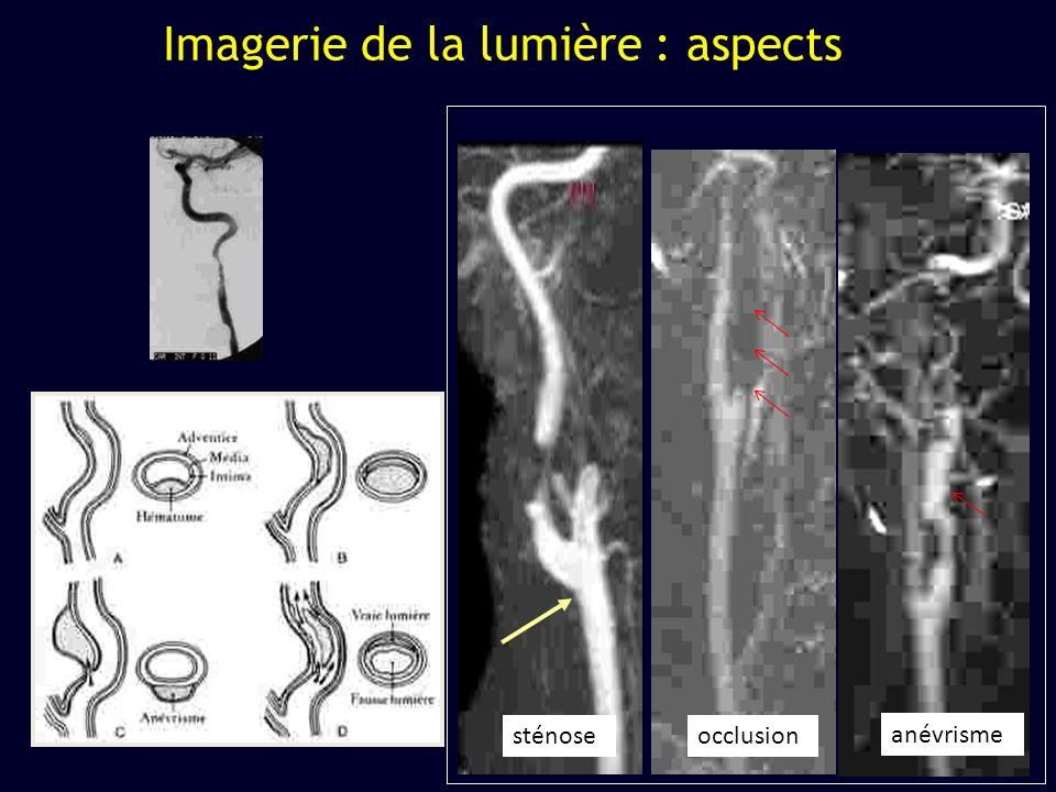 Imagerie de la lumière : aspects