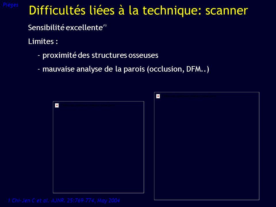 Difficultés liées à la technique: scanner