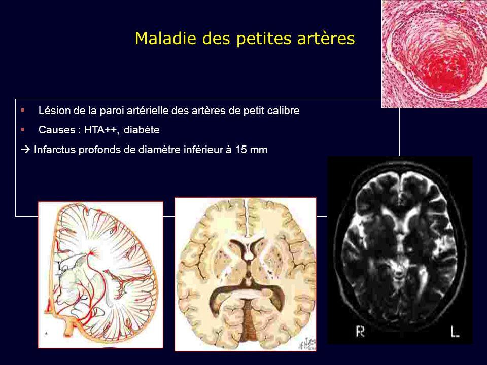 Maladie des petites artères