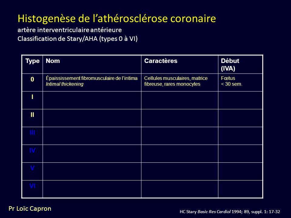 Histogenèse de l'athérosclérose coronaire artère interventriculaire antérieure Classification de Stary/AHA (types 0 à VI)