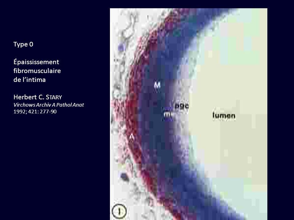 Type 0 Épaississement fibromusculaire de l'intima Herbert C