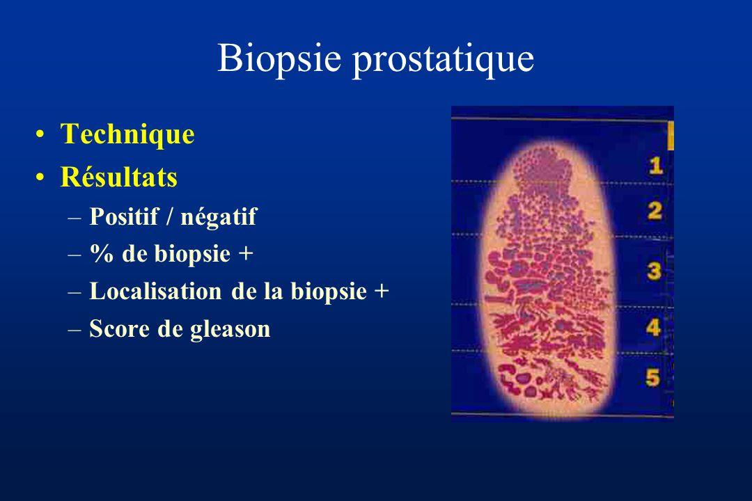 Biopsie prostatique Technique Résultats Positif / négatif