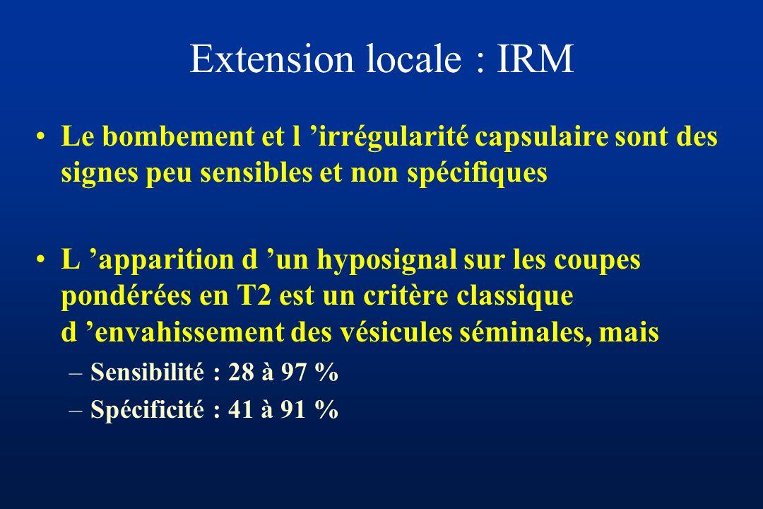 Extension locale : IRM Le bombement et l 'irrégularité capsulaire sont des signes peu sensibles et non spécifiques.