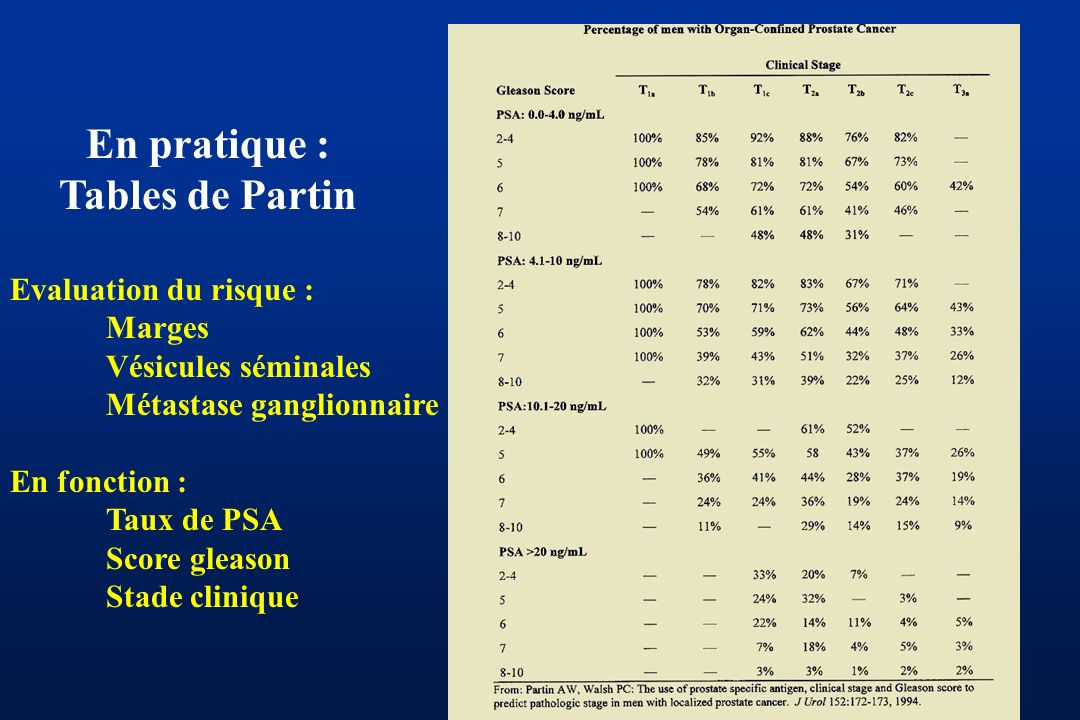 En pratique : Tables de Partin