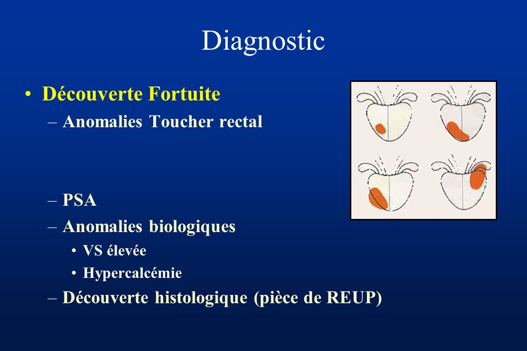 Diagnostic Découverte Fortuite Anomalies Toucher rectal PSA