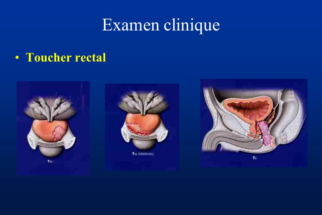 Examen clinique Toucher rectal