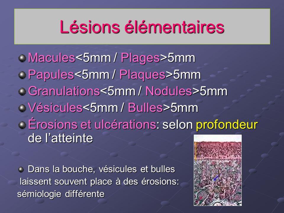 Lésions élémentaires Macules<5mm / Plages>5mm