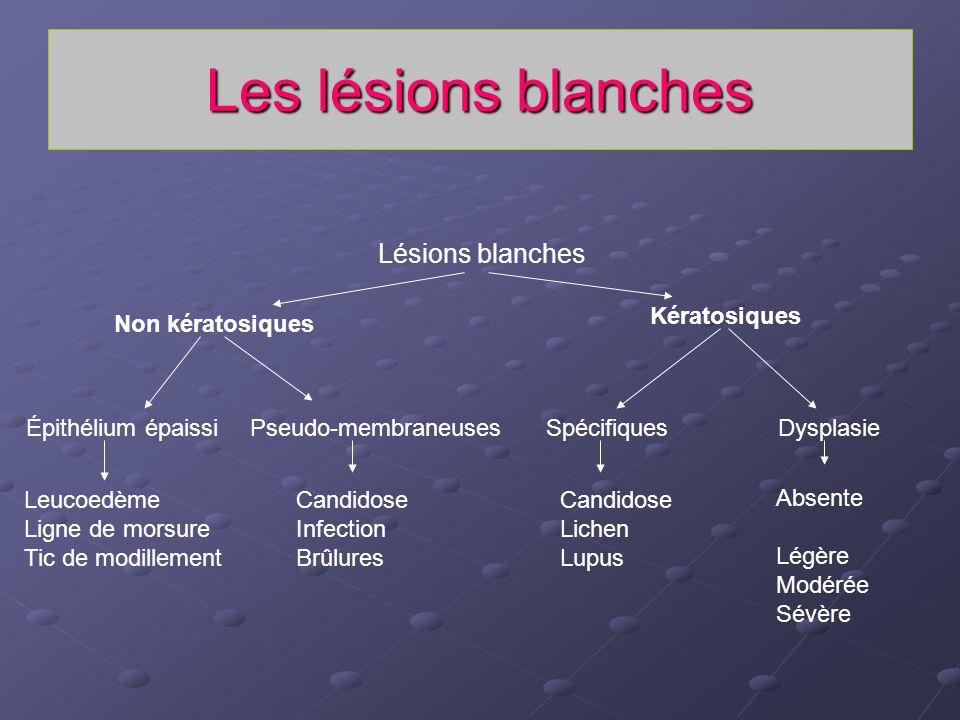 Les lésions blanches Lésions blanches Kératosiques Non kératosiques