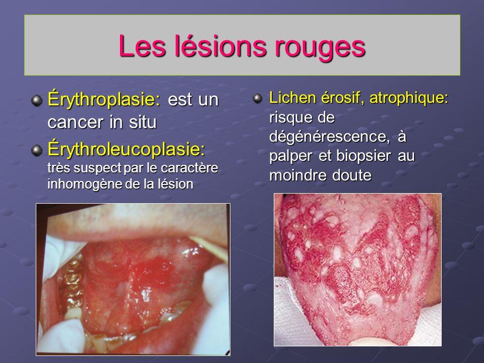 Les lésions rouges Érythroplasie: est un cancer in situ
