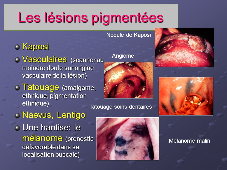 Les lésions pigmentées