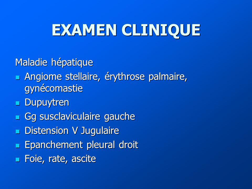 EXAMEN CLINIQUE Maladie hépatique