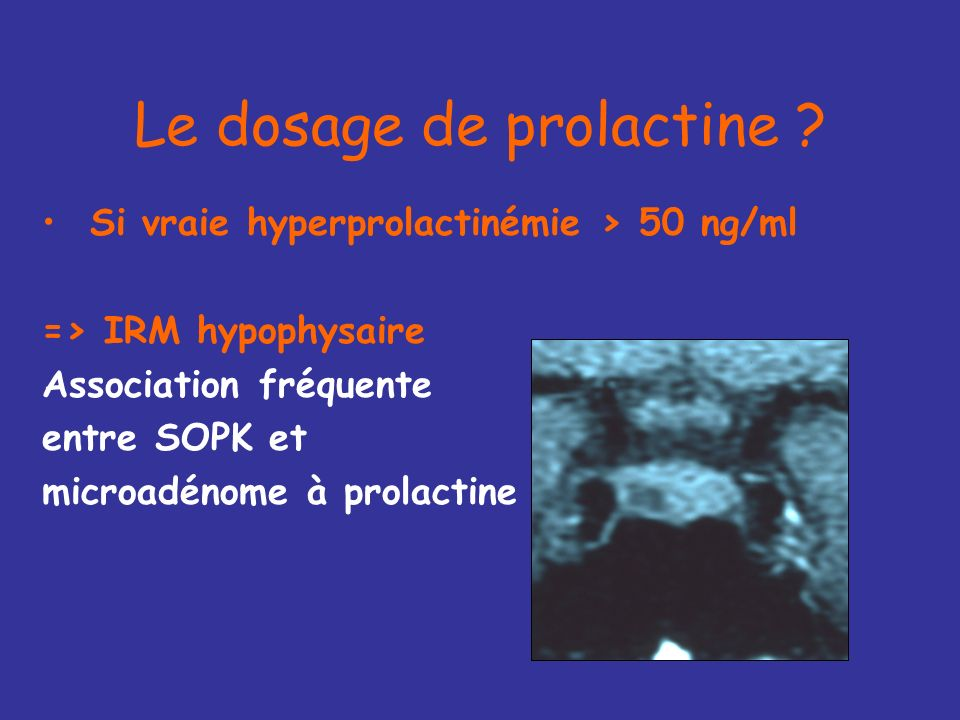Le dosage de prolactine