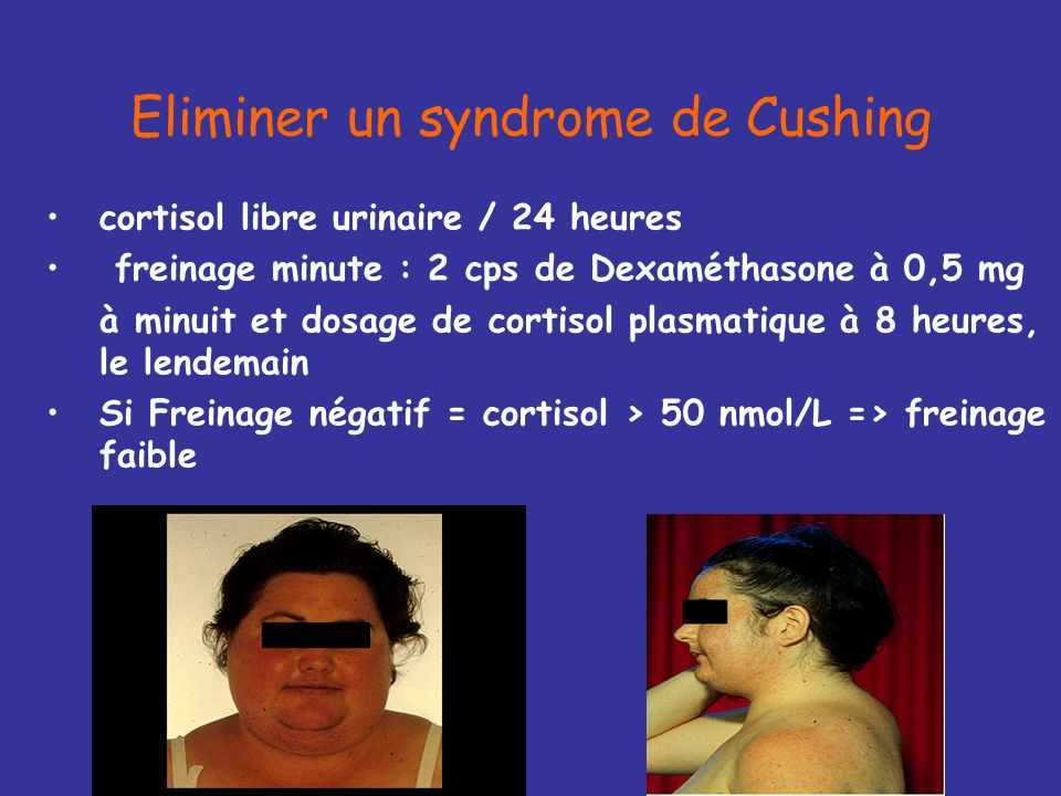 Eliminer un syndrome de Cushing