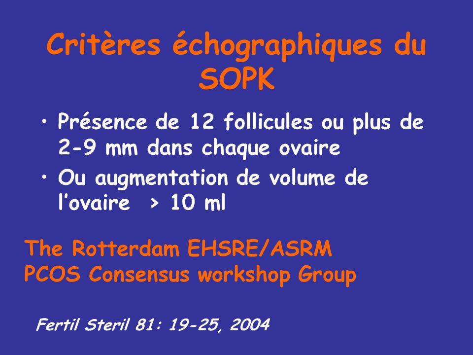 Critères échographiques du SOPK