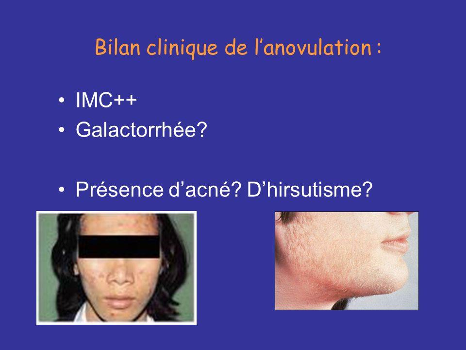 Bilan clinique de l'anovulation :