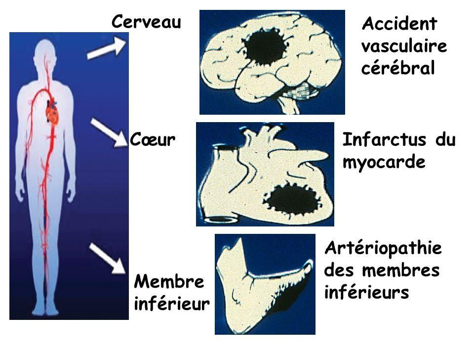 Cerveau Accident. vasculaire. cérébral. Cœur. Infarctus du. myocarde. Artériopathie. des membres.
